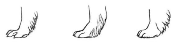 Spreidvoet / doorgezakt / correcte voet